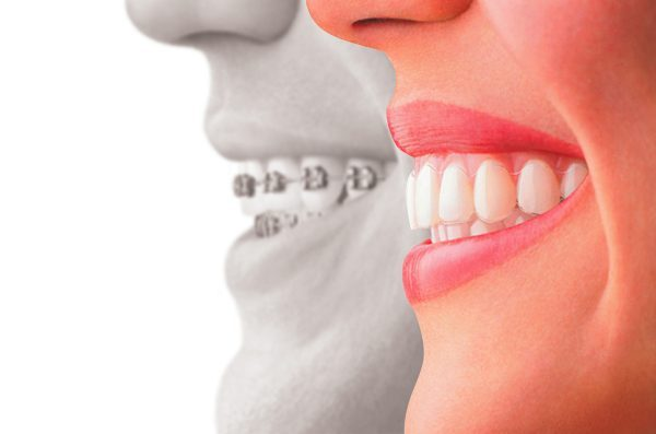 Ortodonzia Tenerife clinica dentale